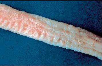 Ancylostoma tubaeforme
