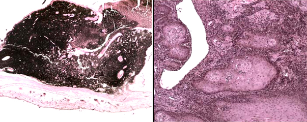 Гистокартина меланомы кожи и плоскоклеточной карциномы железы Зимбала