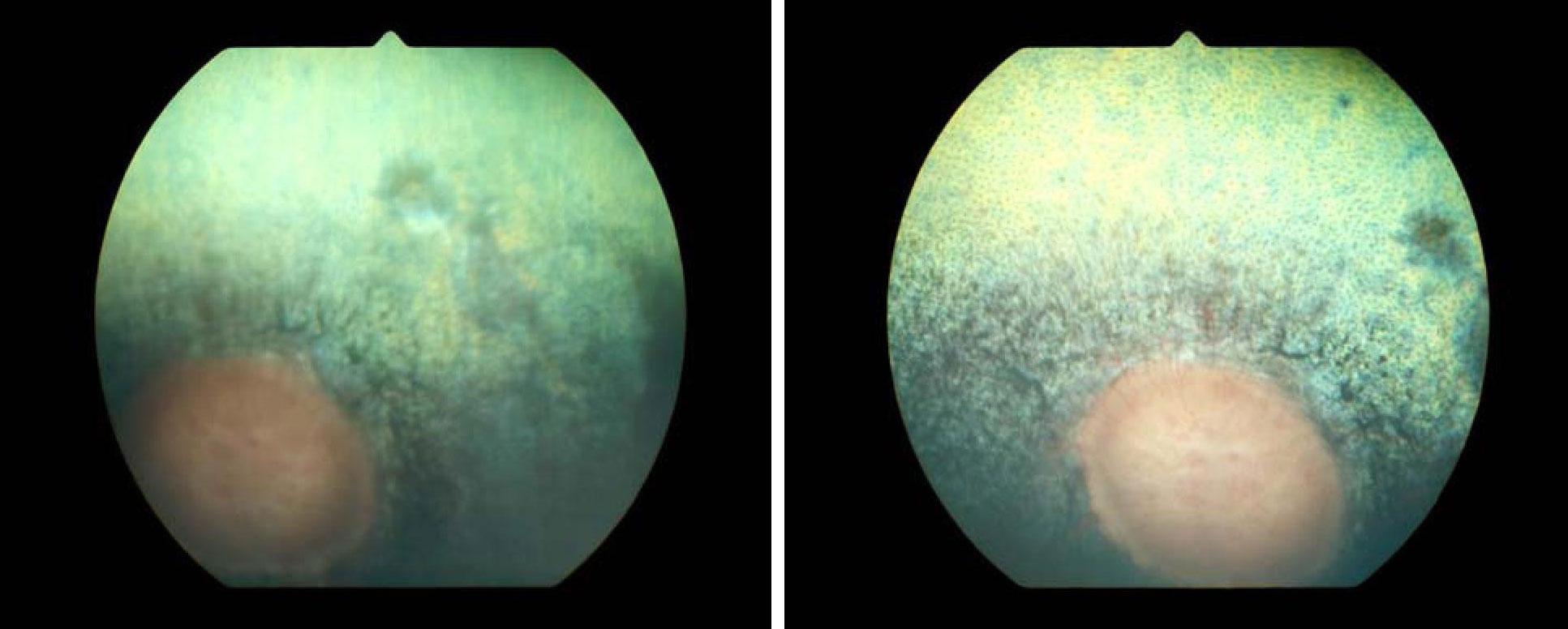 Перипапилярная хориоретинопатия до и после лечени