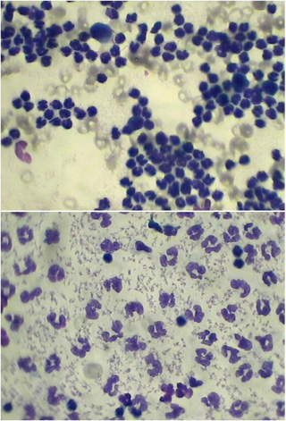 Цитологическое исследование синовиальной жидкости при гнойном артрите у собаки Лабрадор 3 года. Коленный сустав. Все поле покрыто нейтрофильными лейкоцитами